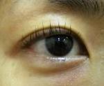 Eye2_4