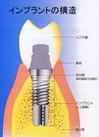 Implant3_2
